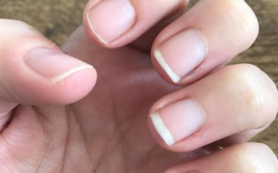 Help! Embarrassed by my nails! Day 8