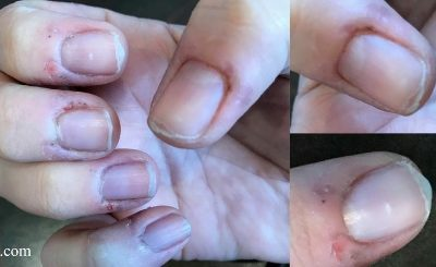 Help! Embarrassed by my nails – Where do I start?